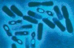 Bacillus thuringiensis (source: http://bacillusthuringiensis.pbworks.com/)